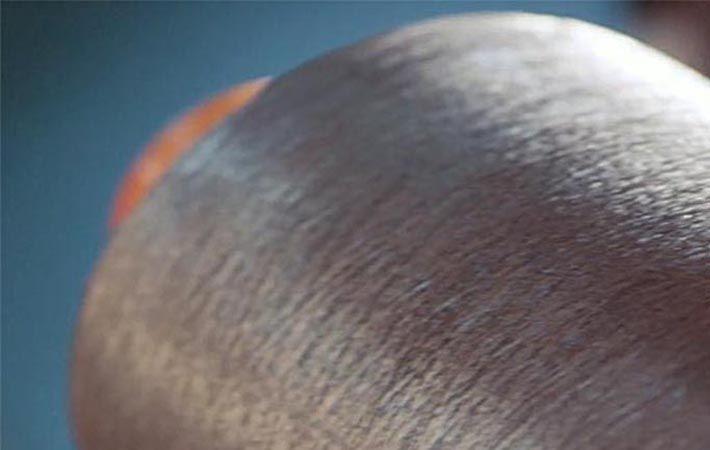 Pic: Noble Biomaterials